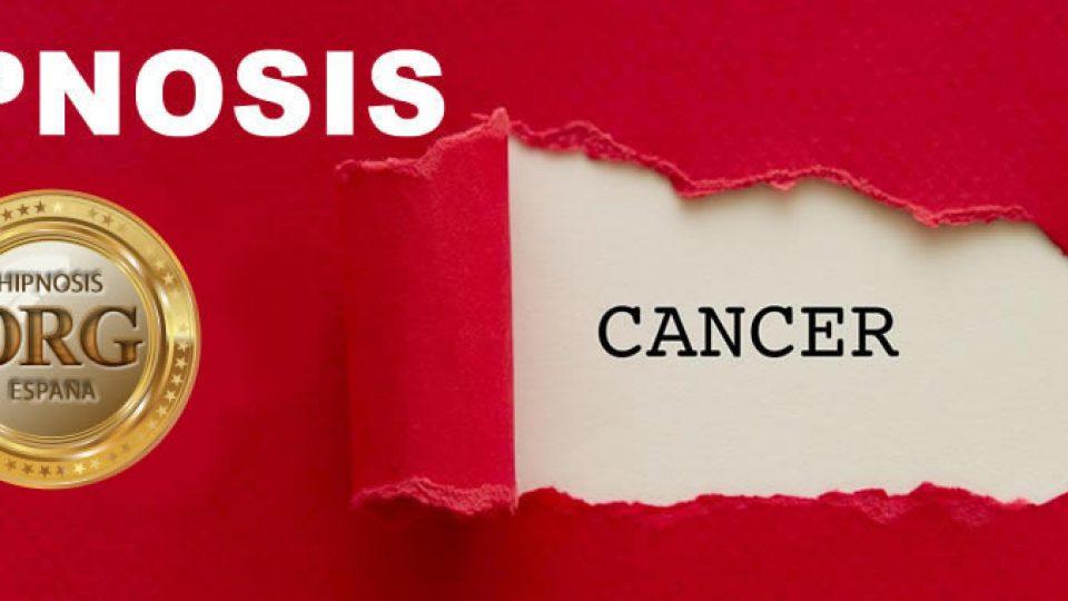 hipnosis-y-cancer