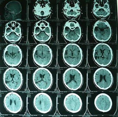 tomografía cerebro
